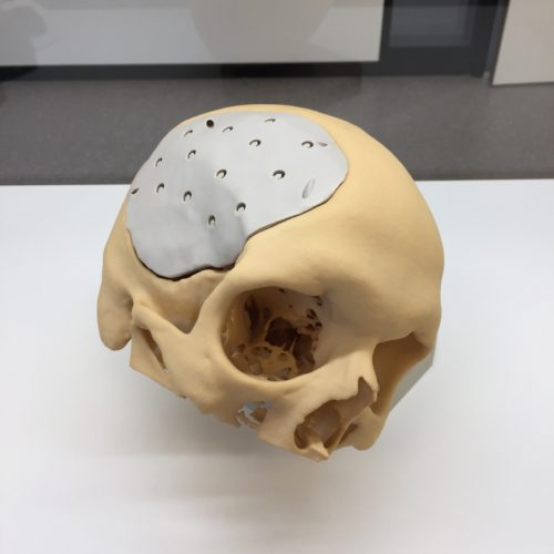 Cranioplasty 2